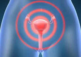 Los 5 tipos de cáncer ginecológico que debes conocer