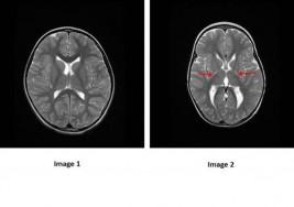 La parálisis cerebral podría tener un componente genético