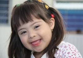 Lo que usted debe saber sobre el síndrome de Down