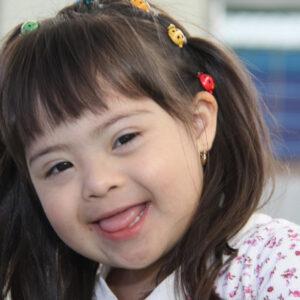 Niña con síndrome de Down.