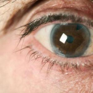 Ojo humano con glaucoma.