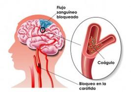 Arritmia cardiaca aumenta hasta cinco veces riesgo de sufrir embolia