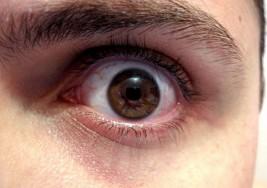 ¿Cómo afecta a tu cuerpo y rostro no dormir?
