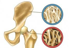 La osteoporosis se puede prevenir naturalmente