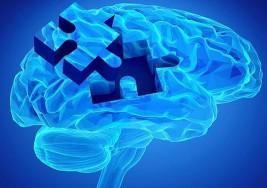 En el tratamiento de la esclerosis múltiple, perder tiempo es perder cerebro