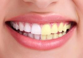 Vuelve a sonreír con estas 5 efectivas formas de blanquear tus dientes de manera natural