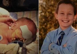 Madres comparten fotos del 'antes y después' de sus hijos prematuros