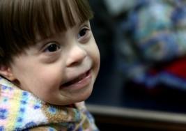 ¿Se debería curar el síndrome de Down?