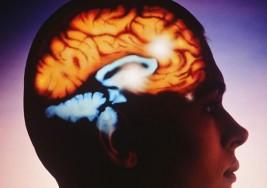 Programa de Coinversión Social apoya a personas con parálisis cerebral