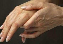 Cómo vencer la artritis reumatoide y no decaer en el intento
