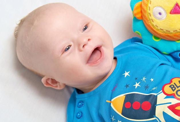 Resultado de imagen para bebes con sindrome de down