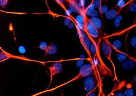 Esclerosis múltiple la capacidad eléctrica de las células