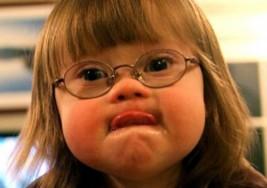Missouri quiere prohibir los abortos de niños con síndrome de Down