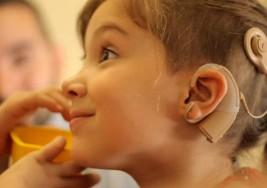 Implante coclear, una opción para niños con sordera profunda
