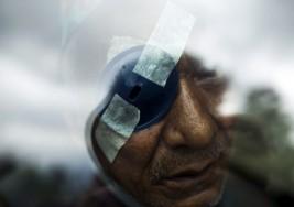 Células madre para regenerar ojos con cataratas