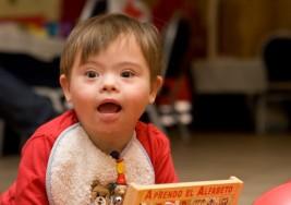 Descubren alteraciones neuronales asociadas al Síndrome de Down