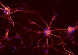 Un antihistamínico revierte parcialmente la pérdida de visión en la esclerosis múltiple