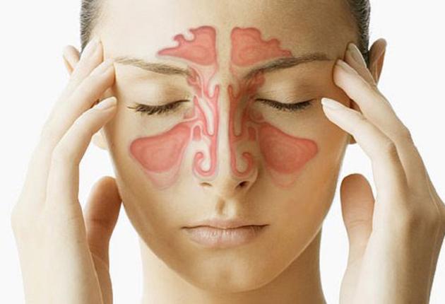 7 prácticos trucos de descongestionar la nariz en unos minutos