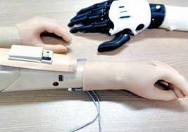 Prototipo paraguayo de brazo biónico, casi cien veces más barato a nivel mundial