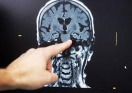 Esta cirugía cambia la vida de personas con epilepsia