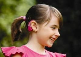 Implante coclear, solución para infantes con sordera