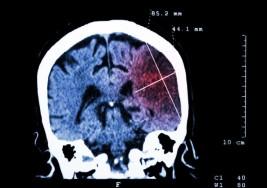 Nueve de cada 10 ataques cerebrales se podrían prevenir