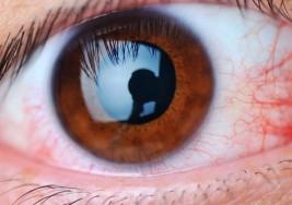 Retinopatía diabética, tercera causa de ceguera en el mundo