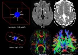 Se busca la cura para la esclerosis múltiple con un tratamiento muy innovador