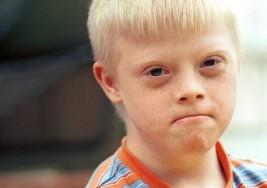 La prueba médica que podría acabar con el síndrome de Down (y por qué algunos no quieren que eso ocurra)