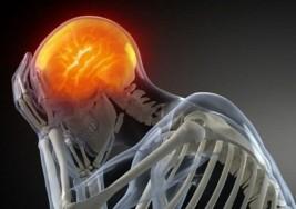 ¿En qué momento deberíamos empezar a preocuparnos por un dolor de cabeza?