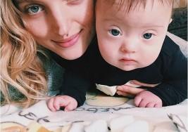 El bebé con Sindrome de Down de una modelo, una estrella de Instagram