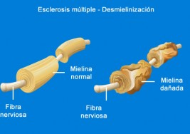 Una sesión clínica analiza las necesidades de los enfermos de esclerosis múltiple