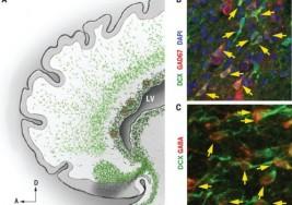 Descubren un posible origen de la epilepsia y el autismo