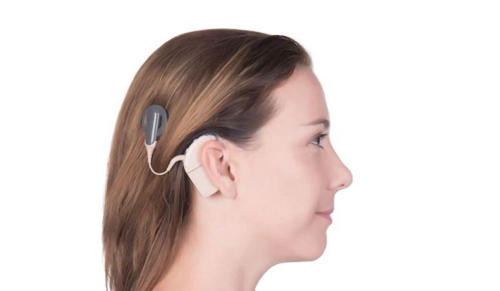 Un avance esperanzador para las personas que sufren sordera