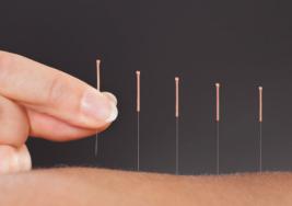 Terapéuticas con acupuntura brindadas en el IPN coadyuvan al tratamiento de la parálisis infantil