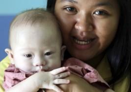 Pareja rechazó a su hija con síndrome de Down: caras de los vientres de alquiler