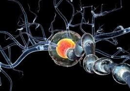 Novedades en la investigación de la esclerosis múltiple