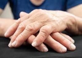 Una nueva forma de tratar la artritis