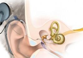 Pérdida de audición: cuándo y cómo hacerle frente