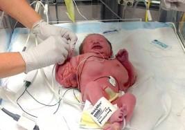 Madre da a luz a bebé con brazos como los de un fisicoculturista; aunque es un milagro que esté viva la llaman la bebé Hulk