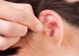 Otro método para adelgazar… la acupuntura (todo lo que debes saber)