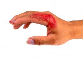 ¿Te muerdes las uñas? Podría peligrar tu vida contrayendo cualquiera de estas 5 enfermedades