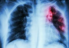 8 síntomas de que sufres de Fibrosis Pulmonar Idiopática sin saberlo