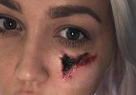 Mujer se despierta con un dolor insoportable y un agujero en su cara
