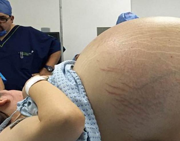 Un vientre abultado le hizo creer que se convertiría en madre, pero no sabía que pasaría a la historia de la medicina