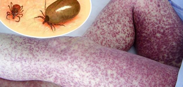 Que curar la psoriasis sobre las rodillas