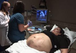 Mamá hispana descubre que espera CINCO bebés; luego su panza se llena de moretones
