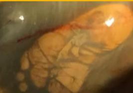 Mujer embarazada carga a su bebé en su estómago en lugar del útero pero no lo descubre hasta que es demasiado tarde