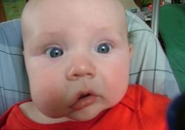 Esta enfermedad produce una deformación en el rostro de tu bebé; conoce sus síntomas a tiempo