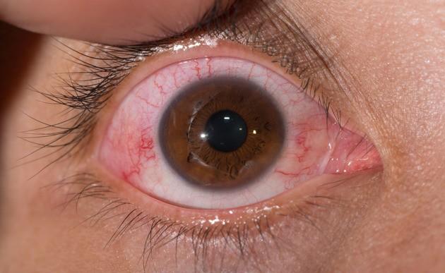 Enfermedad que provoca ceguera en pocas horas avanza a pasos agigantados